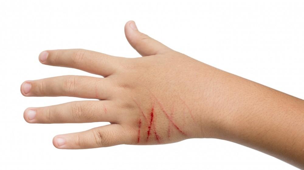 Maladie des griffes du chat : attention aux puces !
